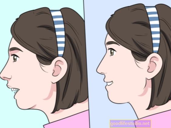 ¿Cómo afecta la salud mental una lesión facial grave a una edad temprana?