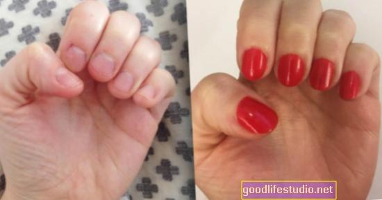 Извън контрол на захапването на ноктите ... Кога е време да посетите лекар?