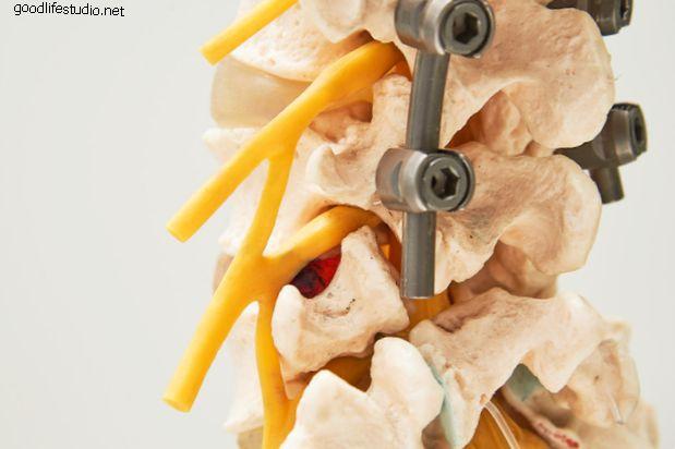 Enfermedad del segmento adyacente y dolor de espalda
