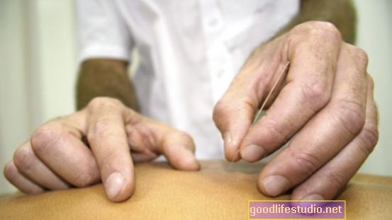 Akupunktūra gali padėti gydyti lėtinį skausmą ir depresiją