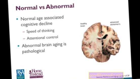 Penuaan Kesan Irama Circadian Otak