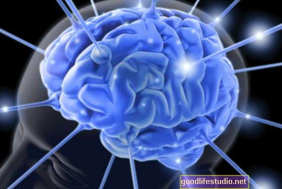 Analizar la actividad cerebral puede ayudar a detectar el autismo