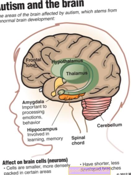 Autisms ietekmē bērnu, pieaugušo smadzenes atšķirīgi