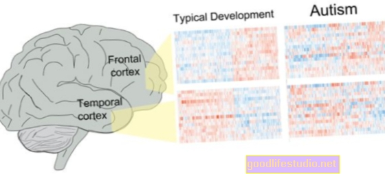 自閉症の脳は安静時により活動的です