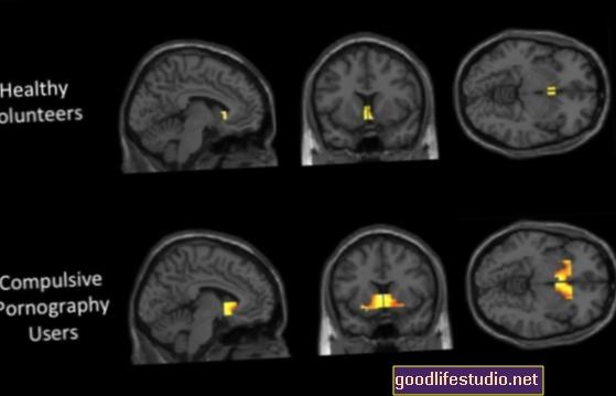 La actividad cerebral de los adictos al sexo refleja la de los adictos a las drogas