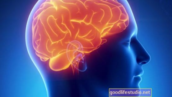 Las diferencias cerebrales en algunos consumidores de drogas pueden indicar riesgo de adicción