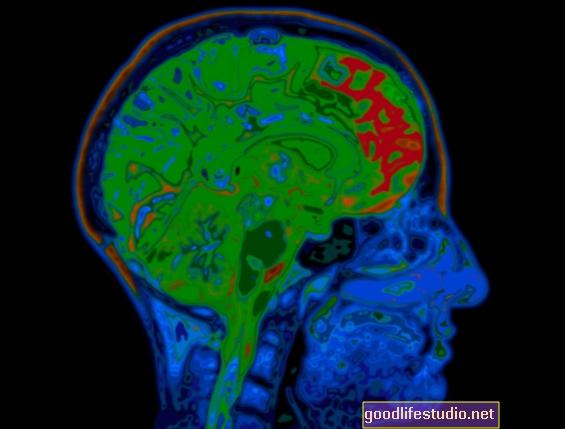 Brain Imaging shledá nechuť a odlidštění může být odlišným procesem