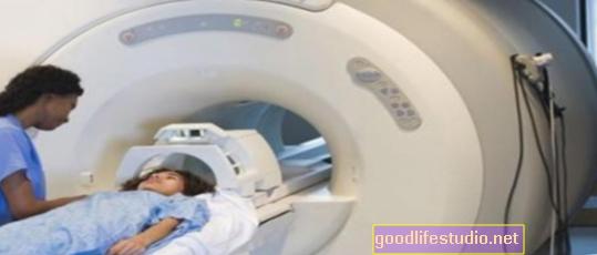 Las imágenes cerebrales identifican a los niños en riesgo de depresión en el futuro