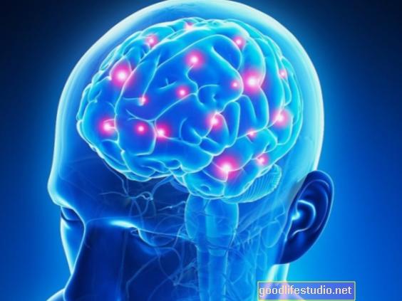 Las imágenes cerebrales pueden mejorar los resultados de las personas con trastornos mentales