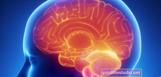 Imágenes cerebrales muestran cambios cerebrales en la depresión