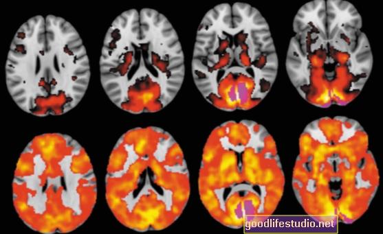 Las imágenes cerebrales muestran cómo el LSD altera la percepción