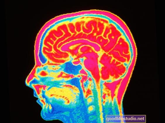 Pencitraan Otak Menunjukkan Sistem Kebiasaan yang terlalu aktif dalam OCD