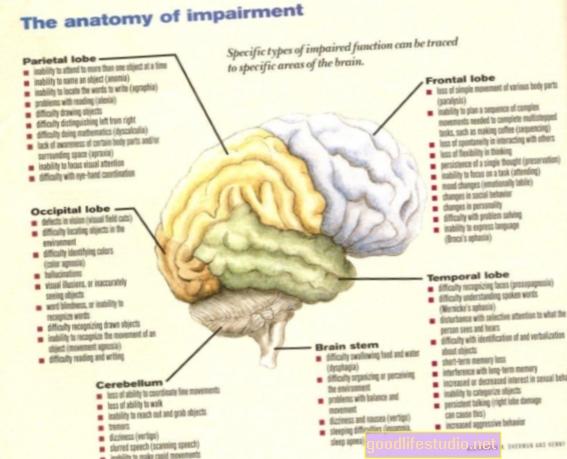 Las deficiencias cerebrales pueden ser similares en el autismo, el TOC y el TDAH