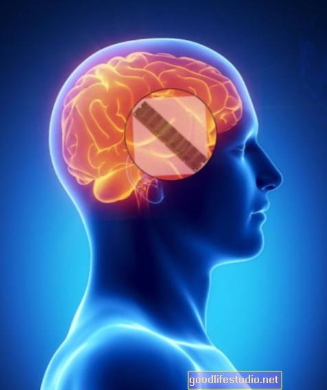 El implante cerebral parece retrasar el Alzheimer