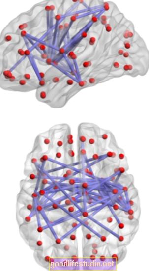 Rối loạn chức năng mạng não liên quan đến trầm cảm ở bệnh nhân đột quỵ