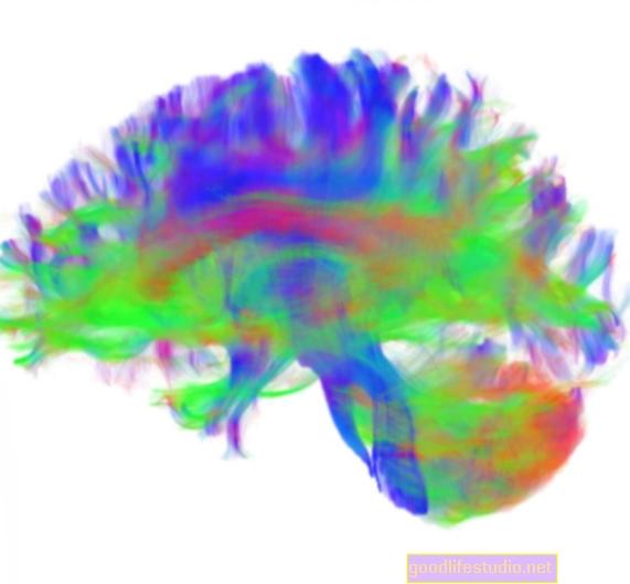 脳のネットワークはOCDの子供で異なります
