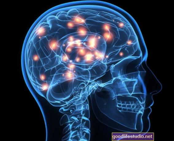 El cerebro de las personas con epilepsia reacciona de manera diferente a la música