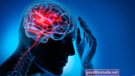 Smegenų profiliai gali kelti problemų dėl alkoholio vartojimo, seksualinio elgesio riziką