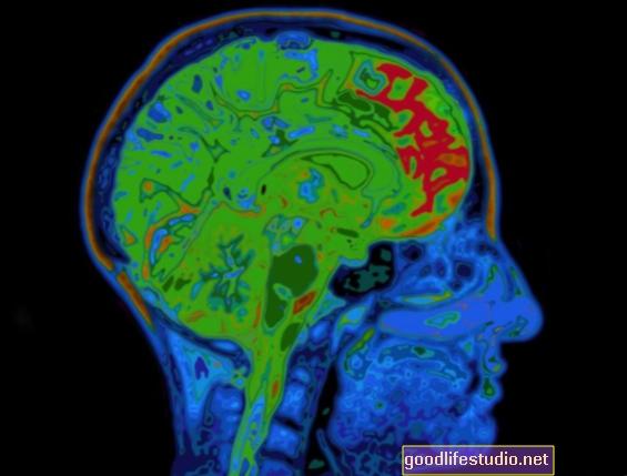 Сканування мозку може адаптувати лікування ПТСР