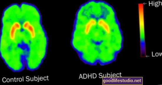 Los escáneres cerebrales de niños con TDAH muestran dificultad para concentrarse