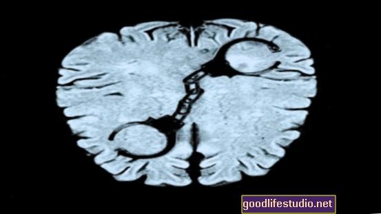 Los escáneres cerebrales muestran que los videojuegos violentos alteran la actividad cerebral