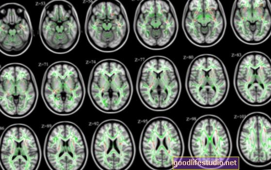 Escáneres cerebrales para detectar posibles problemas de lectura