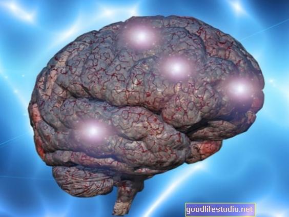 脳は記憶を保存するときに最もやりがいのある体験を選択します