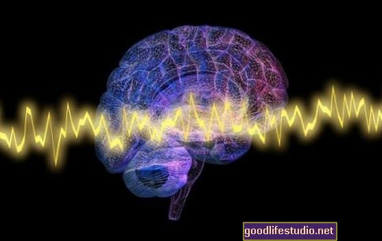 Las ondas cerebrales pueden predecir quién sufre de insomnio bajo estrés