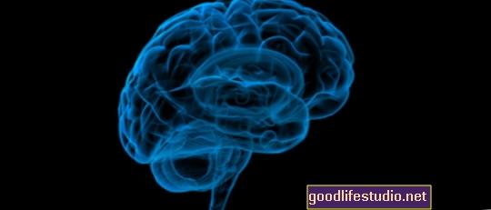 """""""Brain"""" atlygio centras reaguoja ir į blogą patirtį"""