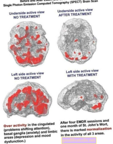 CBT var labot PTSS smadzeņu izmaiņas