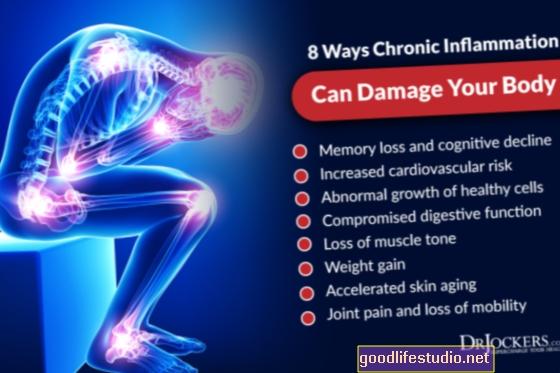 La inflamación crónica puede aumentar el riesgo genético de Alzheimer
