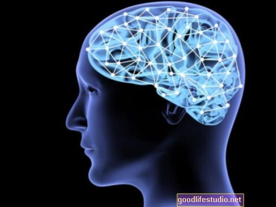La disminución de la conectividad cerebral puede estar relacionada con las alucinaciones de Parkinson