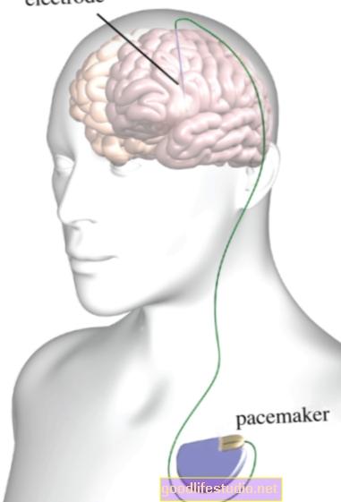 La estimulación cerebral profunda alivia los síntomas específicos del TOC