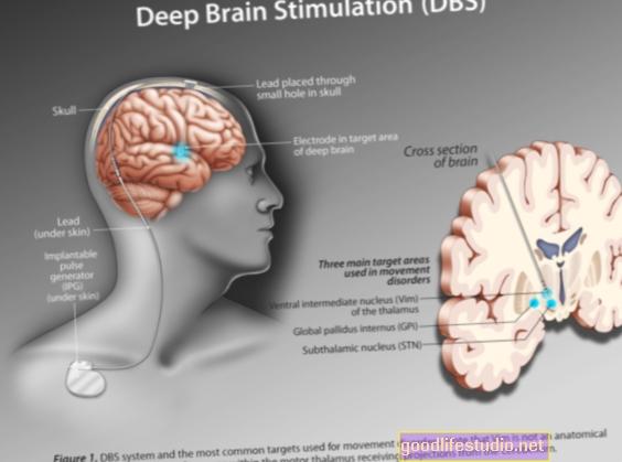 La stimolazione cerebrale profonda riduce i sintomi del Parkinson