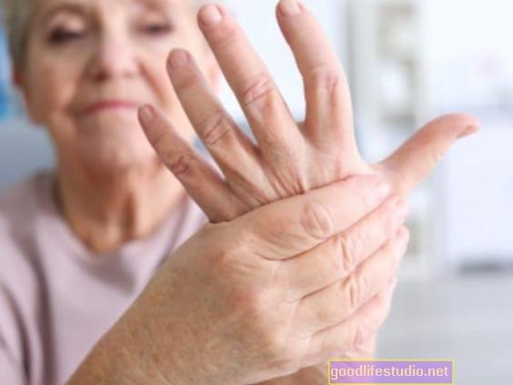 Депресия, тревожност Проследяване на болестта при ранен артрит