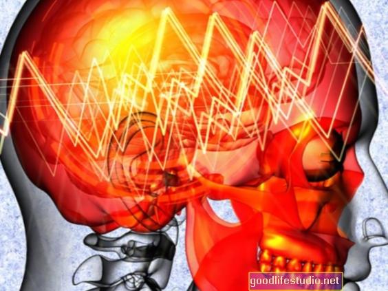 Depressione collegata all'epilessia focale