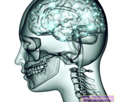 La interrupción de las redes neuronales puede afectar el dolor de la fibromialgia