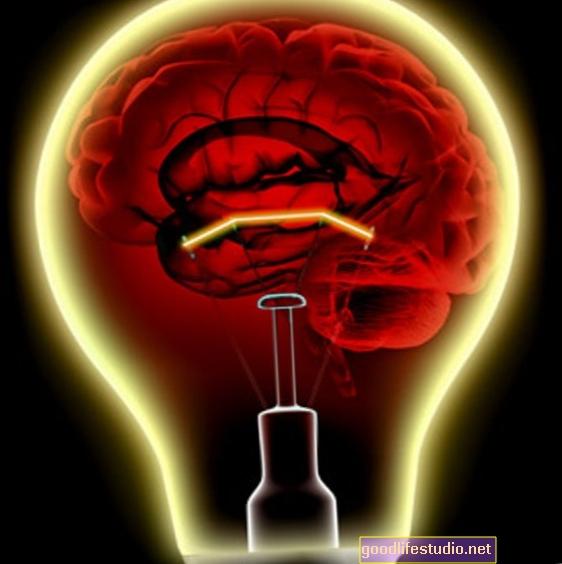 ¿Se despega el cerebro en el autismo?