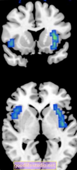 La dopamina afecta la voluntad de trabajar