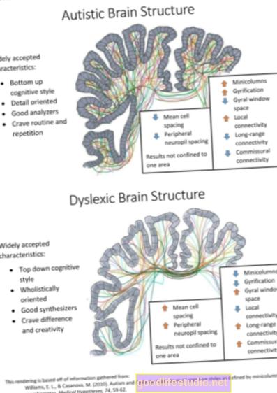 Дислексія, пов'язана з невідповідністю мозку кодуванню звуку