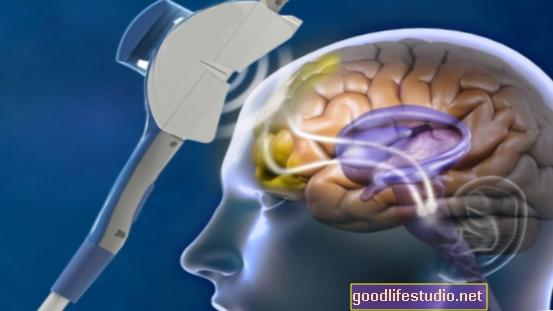 Електромагнитна стимулация (rTMS) за депресия