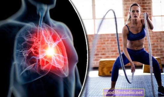 El ejercicio puede contrarrestar los síntomas cardíacos relacionados con la depresión