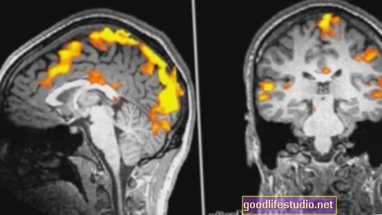 fMRI detecta un desequilibrio cerebral relacionado con la futura depresión adolescente