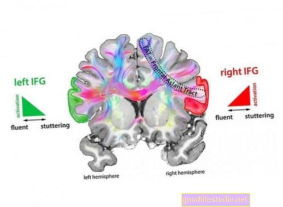 Хиперактивно подручје мозга умешано у муцање