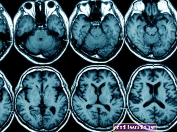 画像研究は肥満の十代の若者たちが脳の接続を破壊していることを発見します