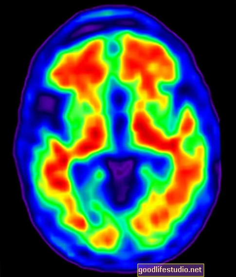 Dấu vết nghiên cứu hình ảnh Hoạt động của não liên quan đến giải quyết vấn đề