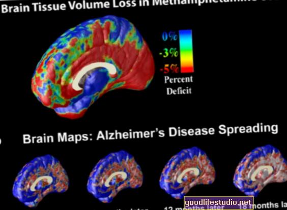 pierderea în greutate legată de demență
