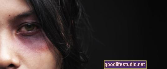 Daugelis smurto šeimoje aukų gali nenustatyti smegenų traumų