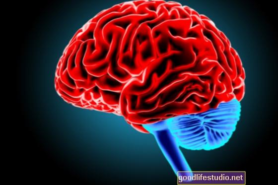 Una leggera scossa al cervello può migliorare la cognizione nei pazienti con schizofrenia