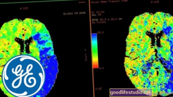"""Analitinė programinė įranga """"MRT plius"""" atvaizduoja emocijas smegenyse"""